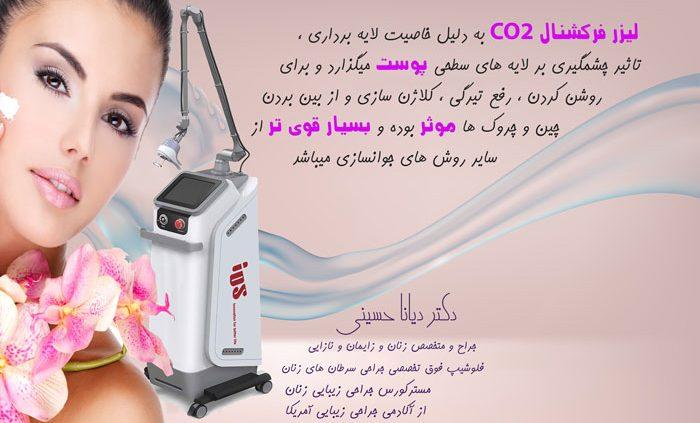 لیزر-سفید-کننده-دکتر-دیانا-حسینی