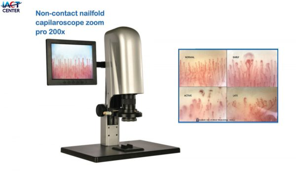 nailfold capillaroscope